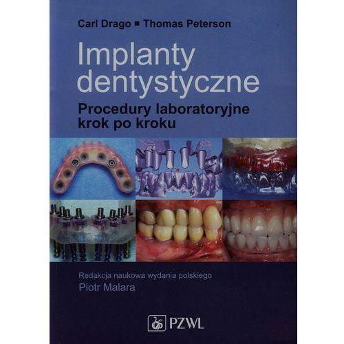 Książki medyczne, Implanty dentystyczne (opr. miękka)