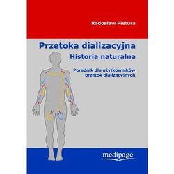 Przetoka dializacyjna Historia naturalna Poradnik dla użytk.